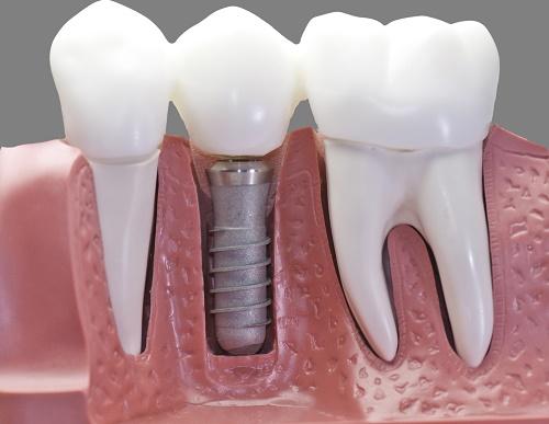 Dental Implant Services - Springdale Dental