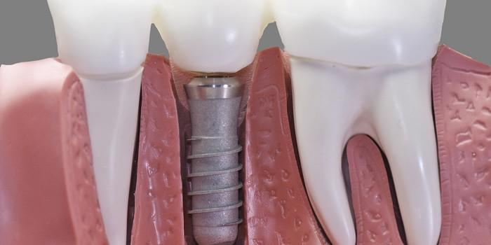 Brampton Dental Implants