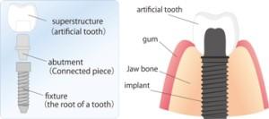 Types of Dental Implants