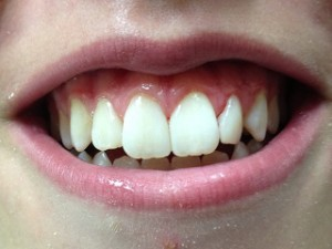 bonding of front teeth dental services springdale