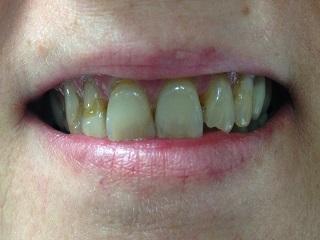 bonding of front teeth springdale