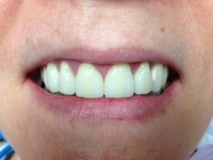 bonding of front teeth springdale