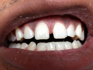 Bonding of the front teeth to use the gap. 1 visit, 1 hour